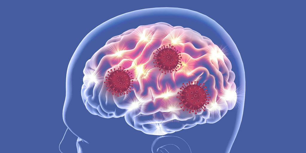 Covid-19 And Neurological Disorders How Does SARS-Cov-2 Enter The Brain