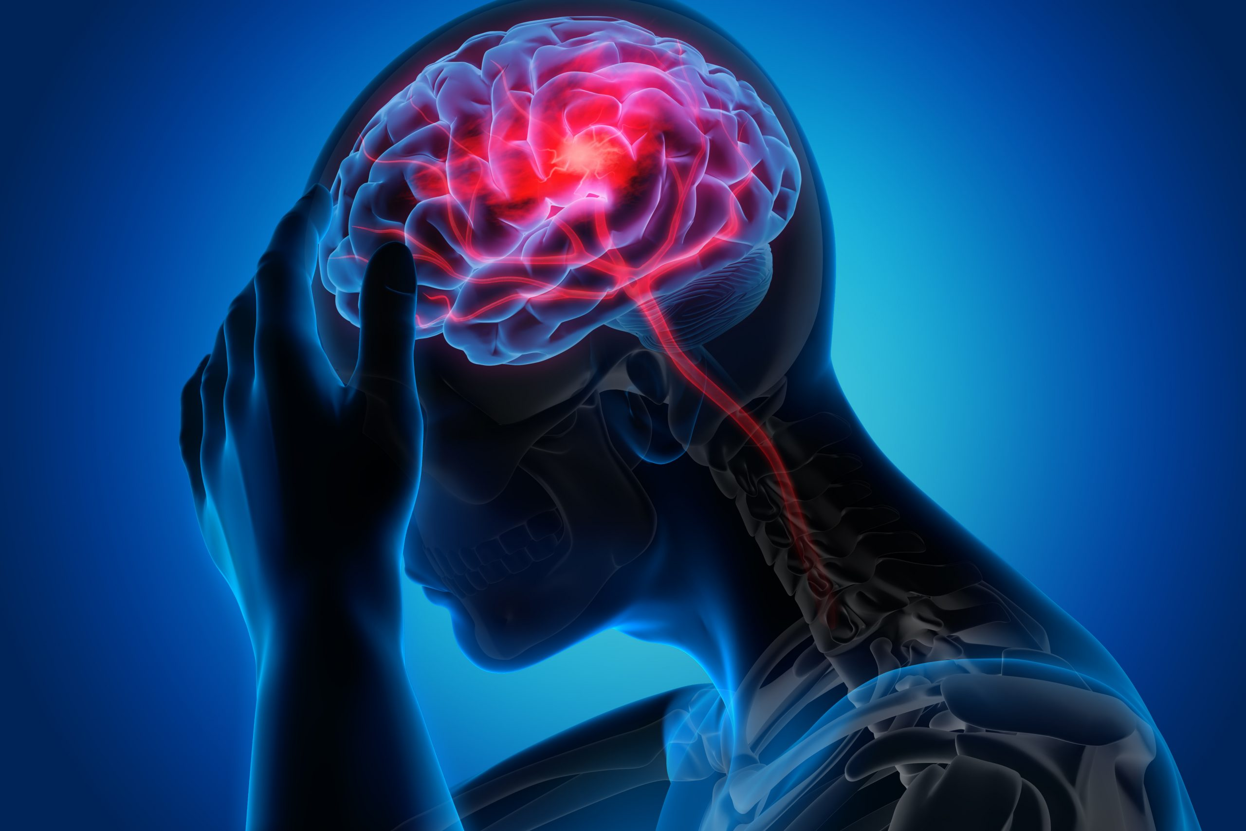 Migraine: How To Avoid And Treat Headaches?